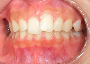 歯並び写真